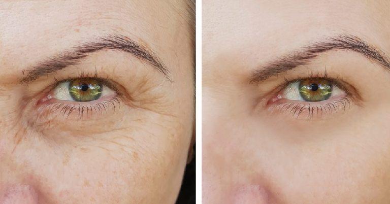 Clear Skin: Pelle LISCIA e Luminosa funziona davvero? Opinioni e prezzo