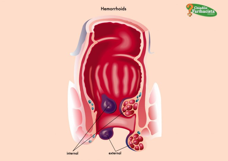 Cura Emorroidi in modo naturale e senza medicinali: è possibile?